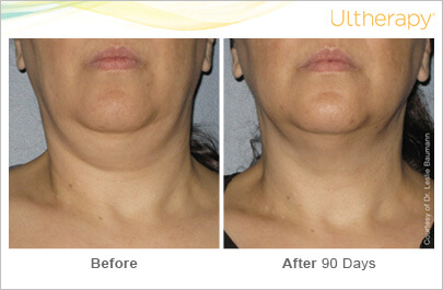 ultherapy-0014-0086w_beforeandafter_90day_1tx_neck