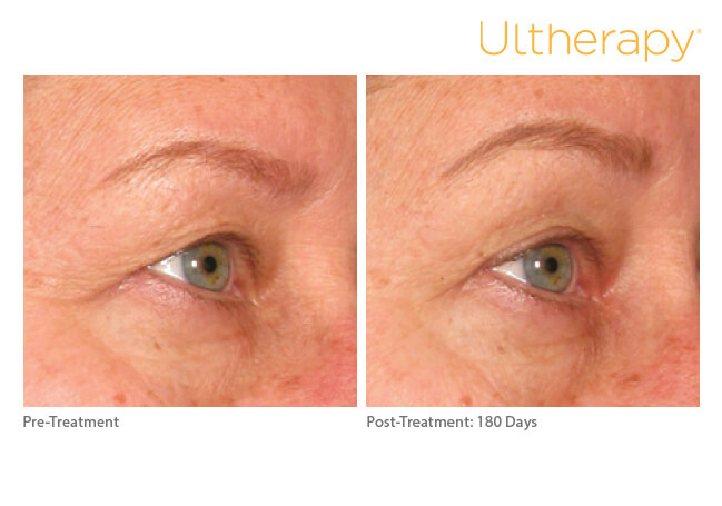 ultherapy_0196d-w_beforeandafter_brow_low-res