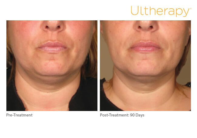ultherapy_0254k-s_before-90daysafter_lower1_low-res