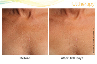 ultherapy_093-001-l-i_beforeandafter-180day_1tx_chest
