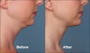 Image provided by Allergan.